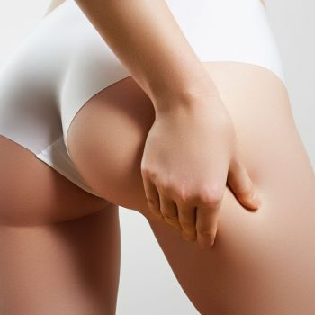 Trattamento anti-cellulite a Pordenone